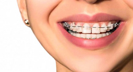 ASTORIA FAMILY ORTHODONTICS - ASTORIA